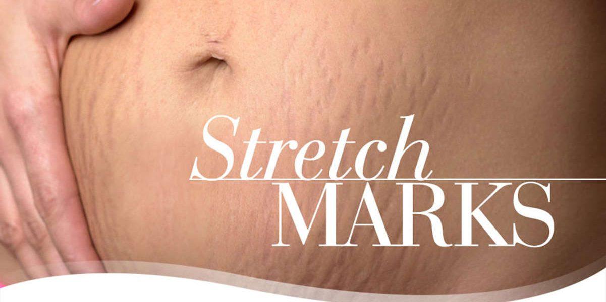 Stretch-Marks-CREAM