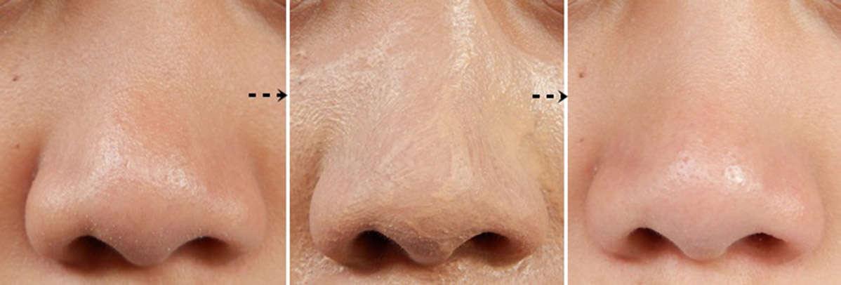 how to shrink pores on nose pore minimizer