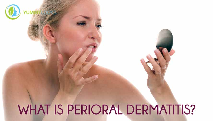 perioral-dermatitis