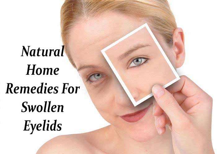 Home-Remedies-For-Swollen-Eyelids