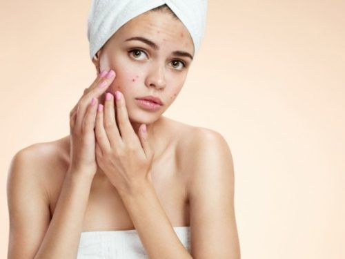 Best Acne Scars Laser Treatment; Dermatologists Top Choice