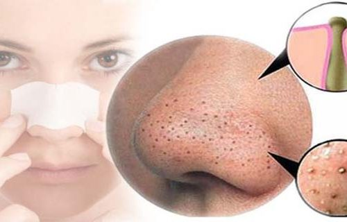 Best At Home Treatment For Blackheads; Via These Easy Methods
