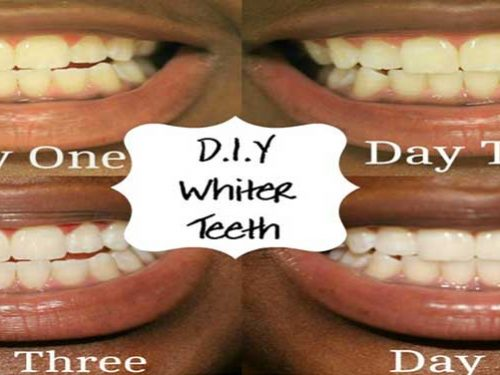 7 DIY Ways to Whiten Teeth Safely at Home