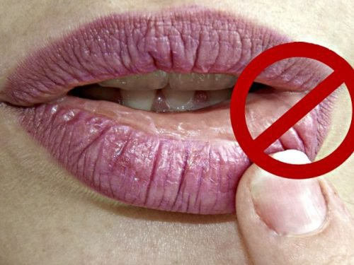 Fastest Guide to Get Rid of Cold sores