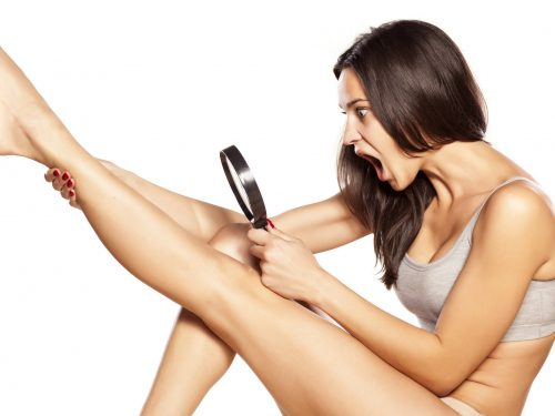 Best Way to Treat Ingrown Hair and Avoid Getting It Back