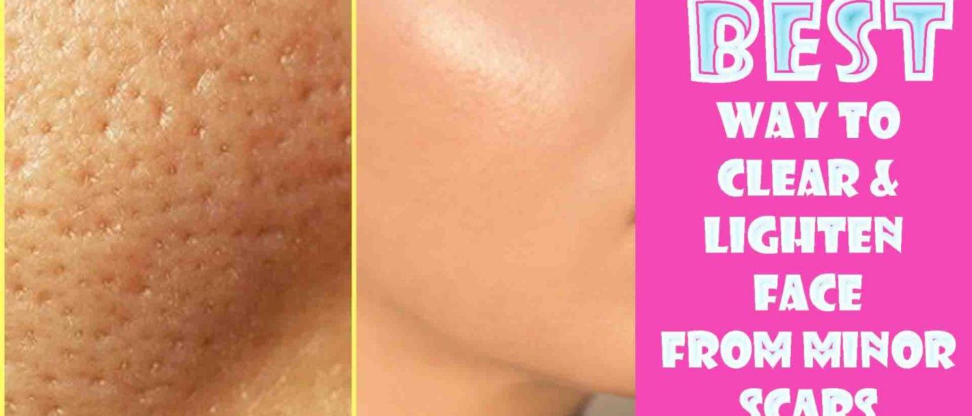 how to lighten scars on face