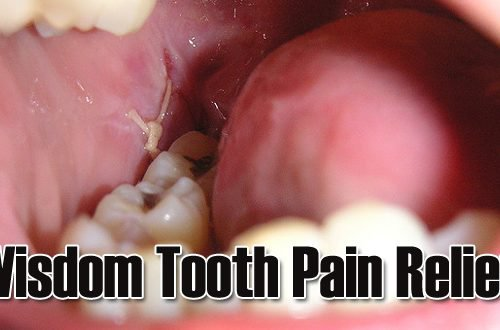 12 Fastest Ways to Get Rid of Wisdom Teeth Pain at Home