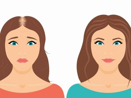Your Ultimate Guide For Hair Transplant For Women: FUE Vs FUT