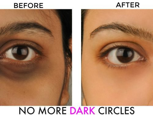 10 Surprising Causes Of Dark Circles; Best Guide To Get Rid Of Them!