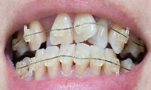 How to Stop Habits that Cause Crooked Teeth