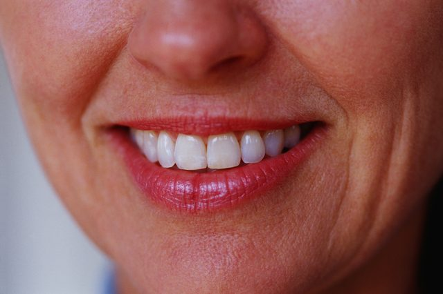 Wrinkled Lips Anti-aging Treatments