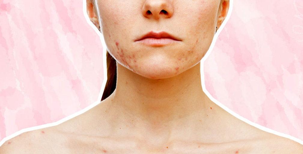 Acne Scar Serum